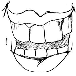 Tooth clip art free free clipart images clipartwiz clipartix
